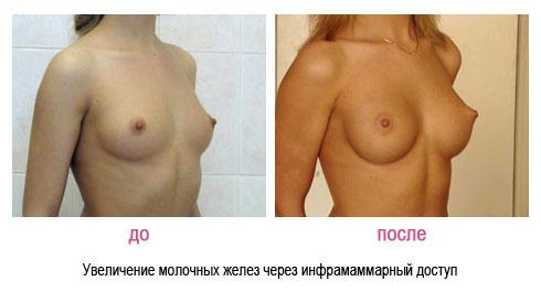 Вы просматриваете изображения у материала: Иванов Владислав Валериевич, пластический хирург